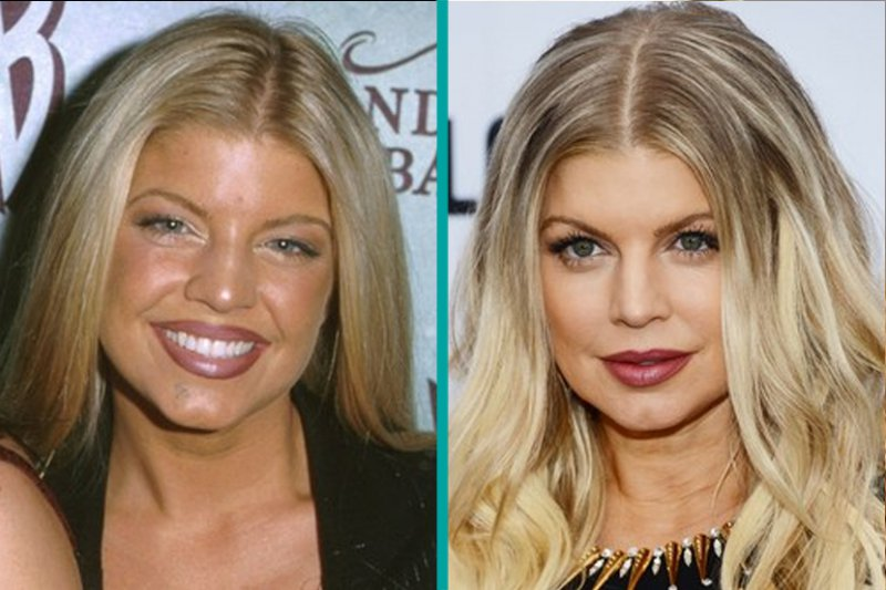 Fergie-12 Celebrity Nose Jobs You Didn't Know About