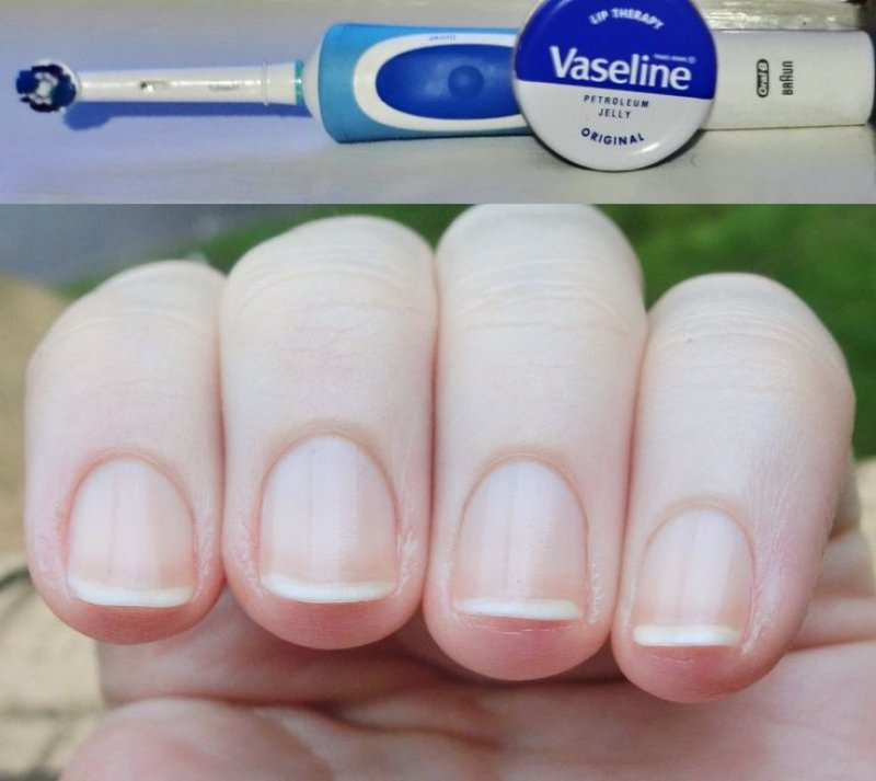 Follow This Hack To Protect Your Cuticles And Skin Around The Nail-12 Healthy And Pretty Nails Tips You Can Try Today