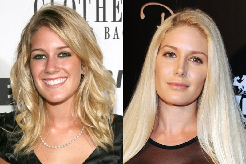 Heidi Montag-12 Celebrity Nose Jobs You Didn't Know About
