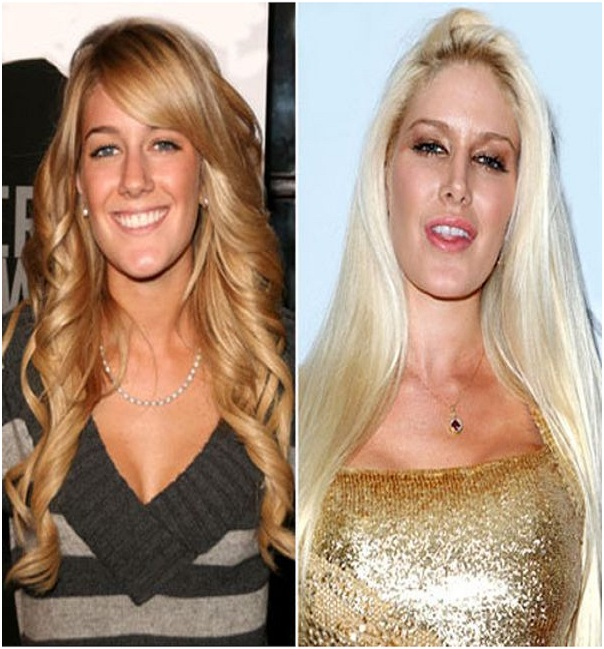 Heidi Montag (Before & After)-Top 18 Celebs With Plastic Surgery