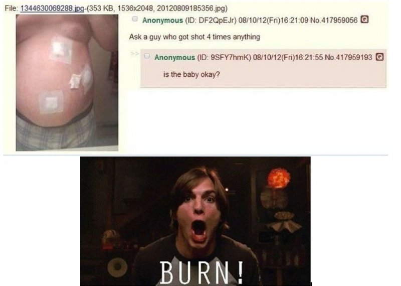 Is The Baby Okay?!-12 Funny Kelso Burn Memes That Will Make You Lol