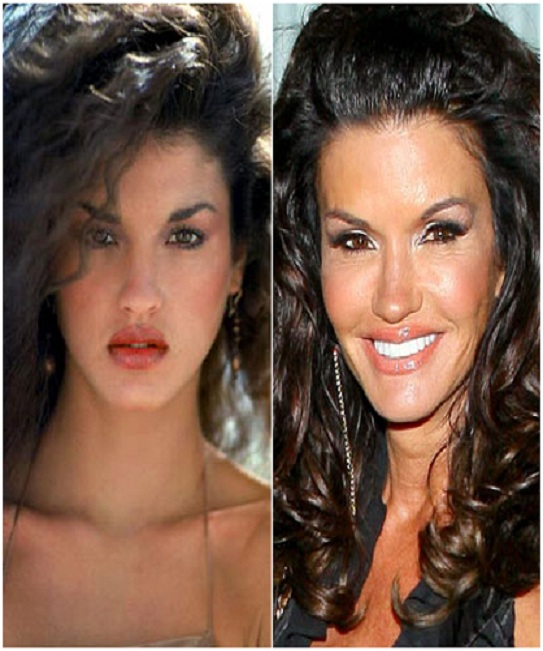 Janice Dickinson (Before & After)-Top 18 Celebs With Plastic Surgery