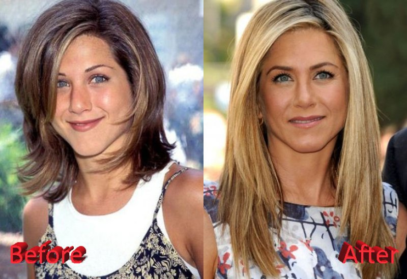 Jennifer Aniston-12 Celebrity Nose Jobs You Didn't Know About