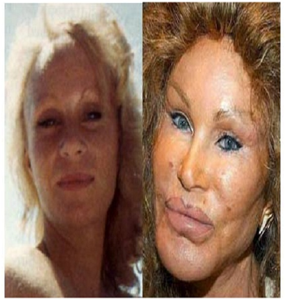 Jocelyn Wildenstein (Before & After)-Top 18 Celebs With Plastic Surgery