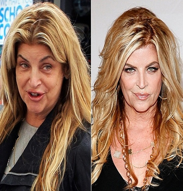 Kirstie Alley-15 Celebrities With And Without Makeup