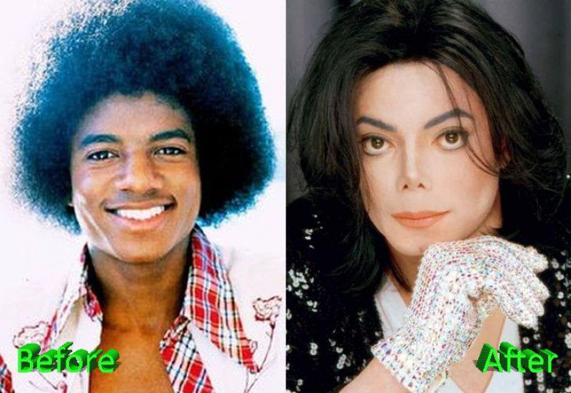 Michael Jackson-12 Celebrity Nose Jobs You Didn't Know About