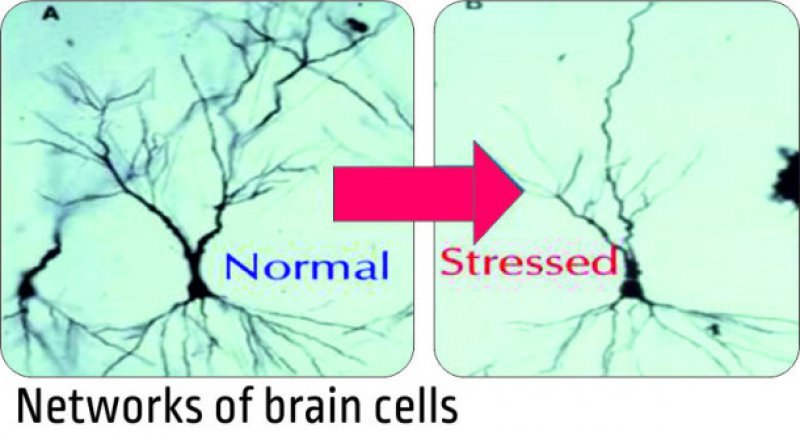 Stress Shrinks The Size Of Brain