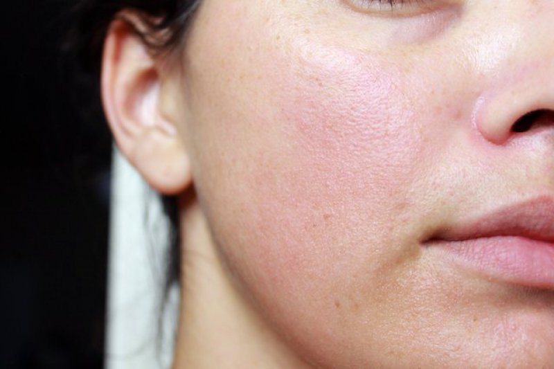 Watch Your Makeup-Top 15 Tips For Getting Rid Of Pimples Forever