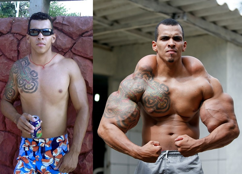 Romario Dos Santos Alves (Hulk)-15 People Who Had Plastic Surgery To Look Like Celebs