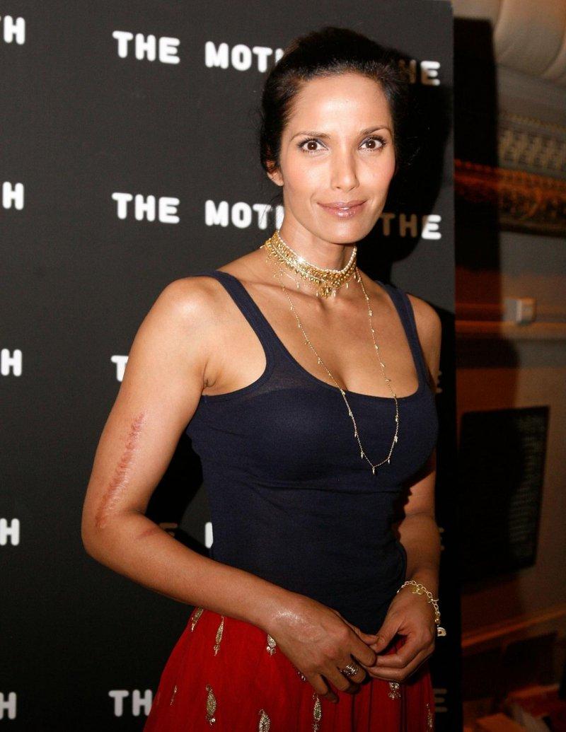 Padma Lakshmi-12 Celebrities With Scars And Deformities