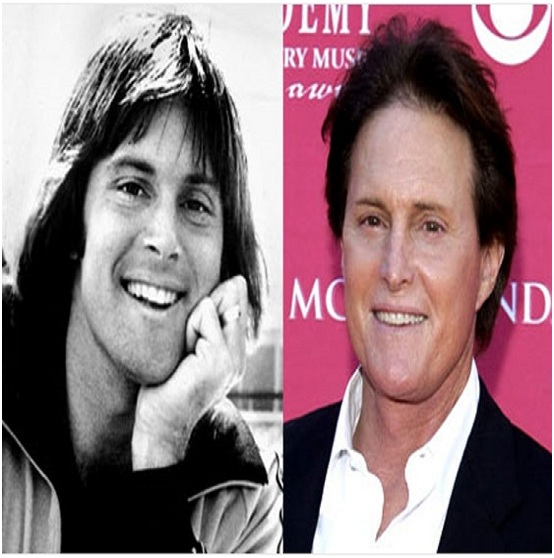 Bruce Jenner (Before & After)-Top 18 Celebs With Plastic Surgery