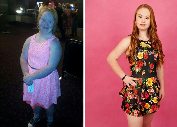 She is Fighting for a Better Cause-Meet Madeline, A Teen Model With Down Syndrome