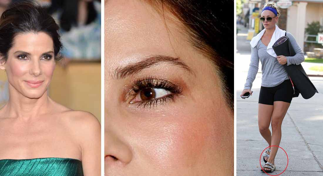 12 Celebrities With Scars And Deformities