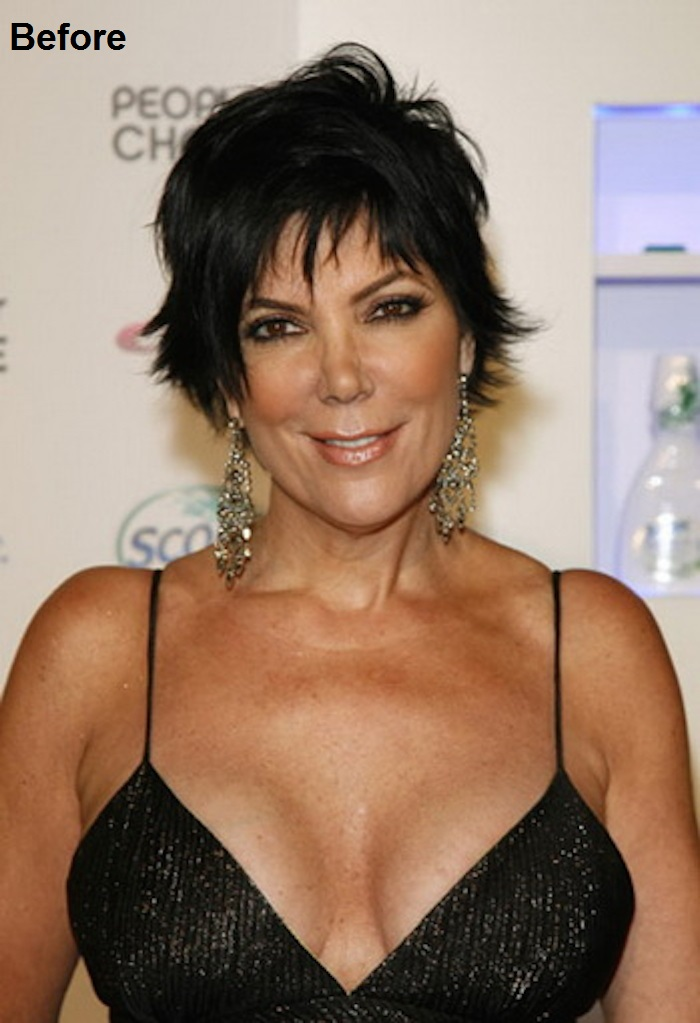 Kris Jenner Before and after Breast Reduction Surgery-15 Celebrities Who Had Breast Reduction Surgeries