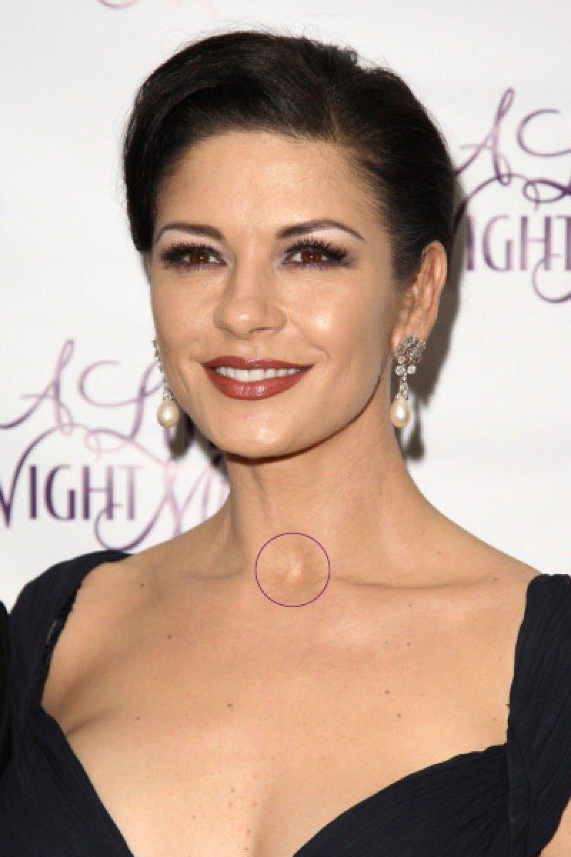 Catherine Zeta Jones - Neck Scar-12 Celebrities With Scars And Deformities