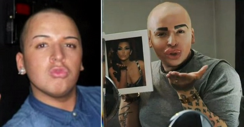 Jordan James Parke (Kim Kardashian Fan)-15 People Who Had Plastic Surgery To Look Like Celebs