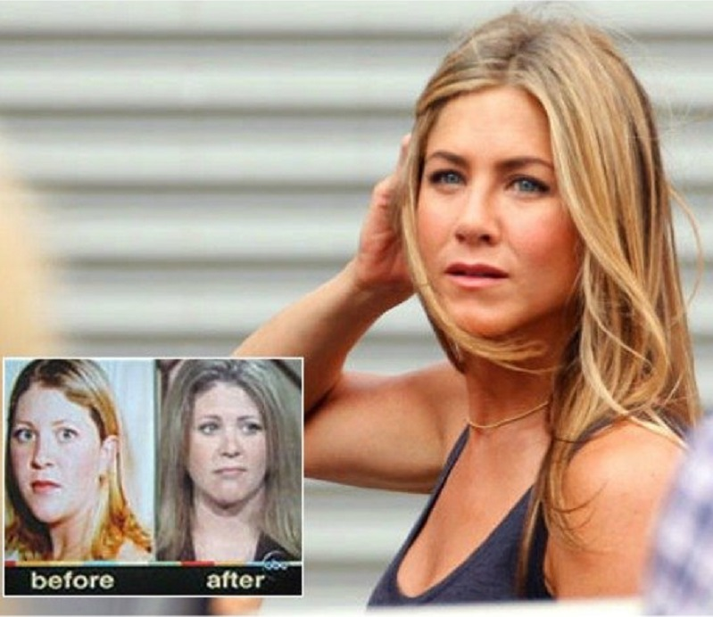 Kelly Chandler (Jennifer Aniston Fan)-15 People Who Had Plastic Surgery To Look Like Celebs