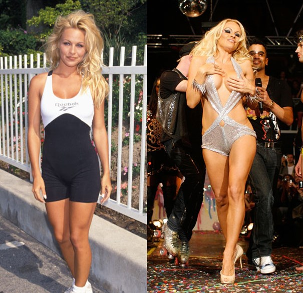 Pamela Anderson-Top 18 Celebs With Plastic Surgery