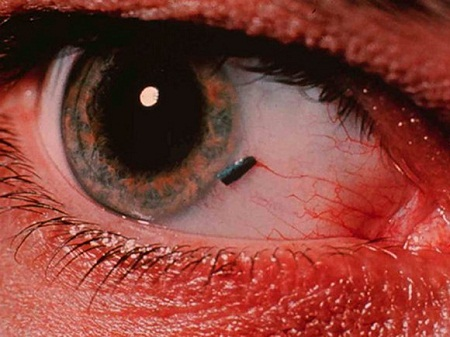 When a Bug Goes into the Eye-15 Most Oddly Painful Things In The World