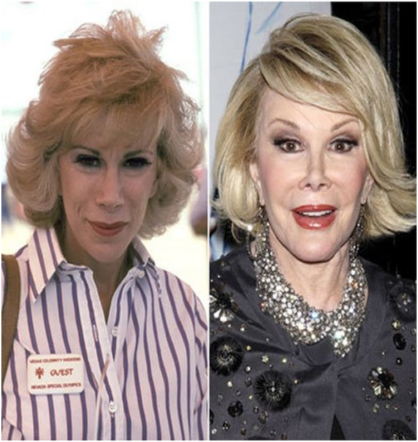 Joan Rivers (Before & After)-Top 18 Celebs With Plastic Surgery