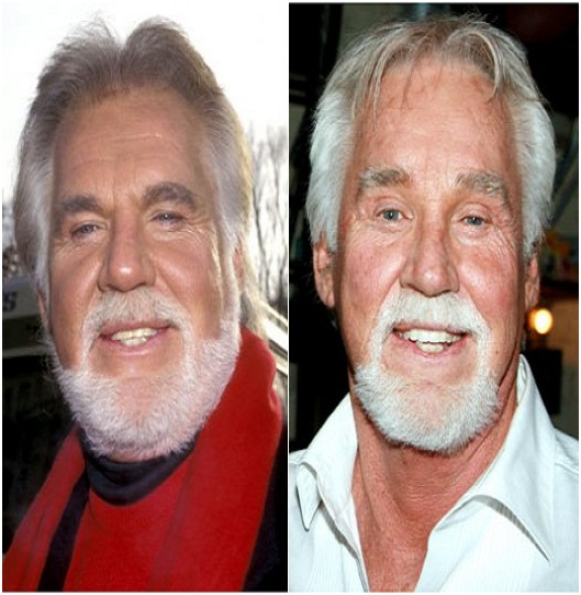 Kenny Rogers (Before & After)-Top 18 Celebs With Plastic Surgery