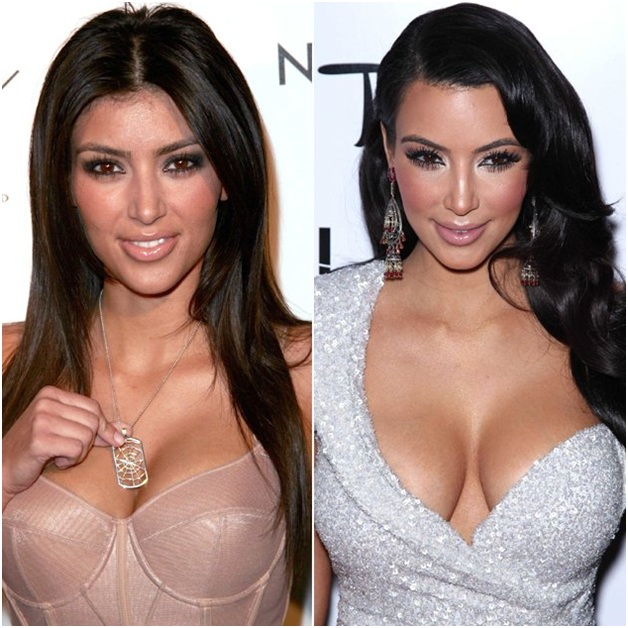 Kim Kardashian (Before & After)-Top 18 Celebs With Plastic Surgery