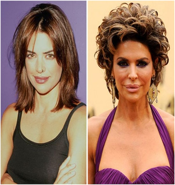 Lisa Rinna (Before & After)-Top 18 Celebs With Plastic Surgery