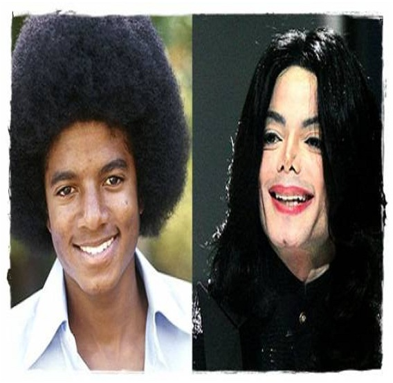 Michael Jackson (Before & After)-Top 18 Celebs With Plastic Surgery