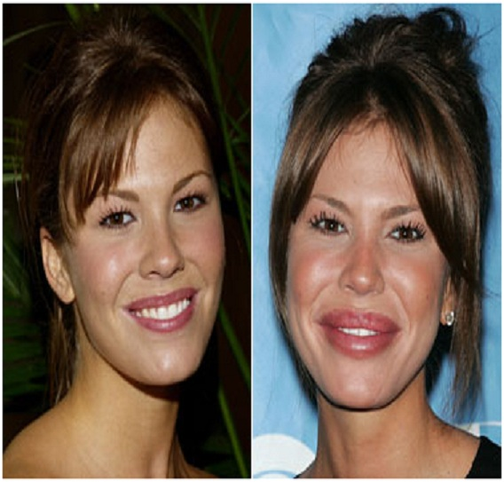 Nikki Cox (Before & After)-Top 18 Celebs With Plastic Surgery