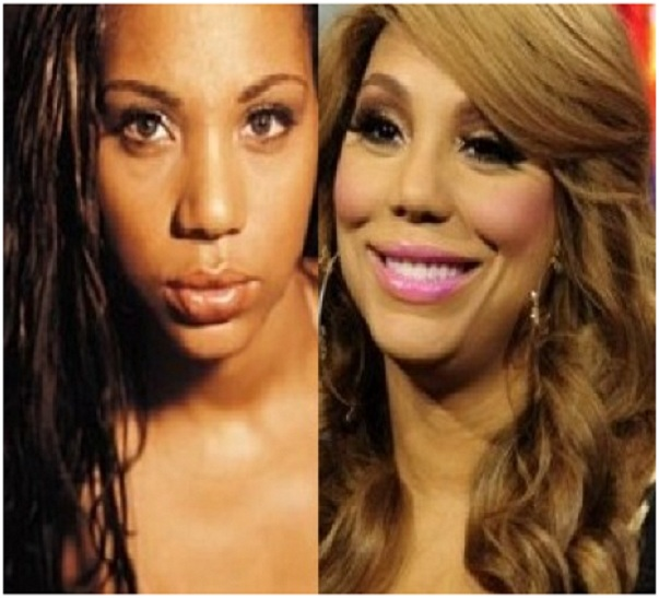 Tamar Braxton (Before & After)-Top 18 Celebs With Plastic Surgery