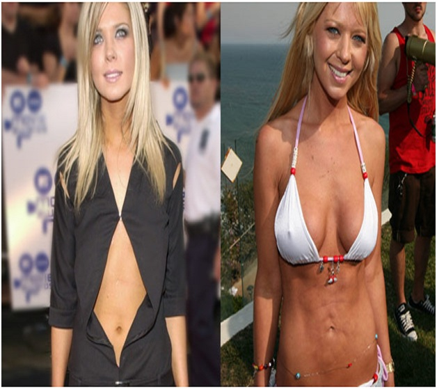 Tara Reid (Before & After)-Top 18 Celebs With Plastic Surgery